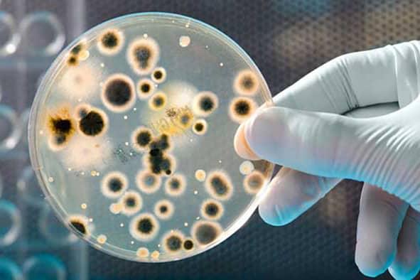 ¿Puede la limpieza con hielo seco o húmedo matar virus o bacterias?